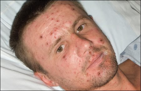 EverythingHealth: Adult ChickenpoxSevere Adult Chicken Pox