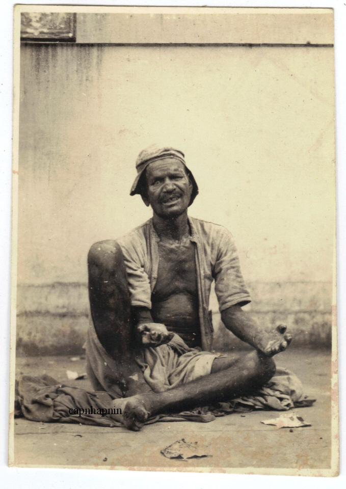 Leper Man Begging -  India 1930's