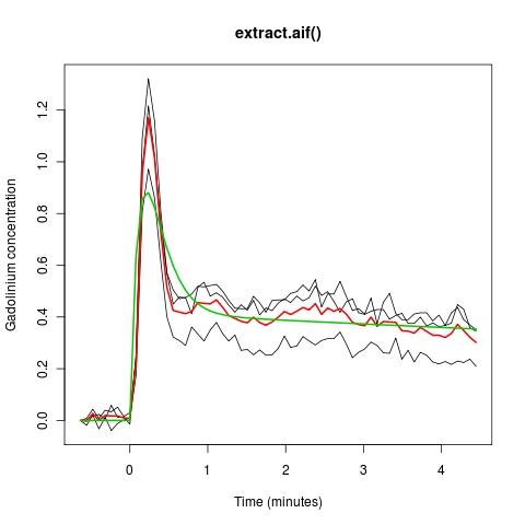 Data-driven arterial input functions