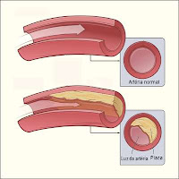 placas de colesterol nos vasos