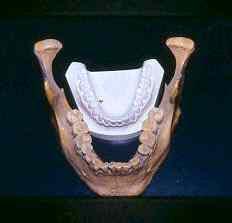 lovelock dentes Isto é incrível   Curiosidades