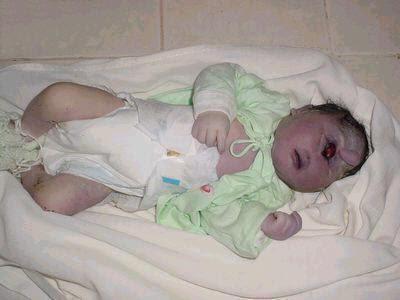 bebe reporterms Estranhas mutações e imagens grotescas   Curiosidades