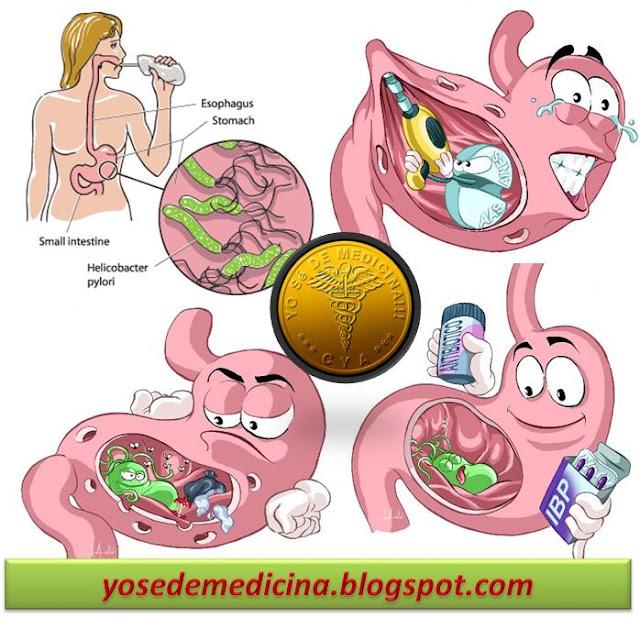 Enfermedades De Los Sistemas Del Cuerpo Humano