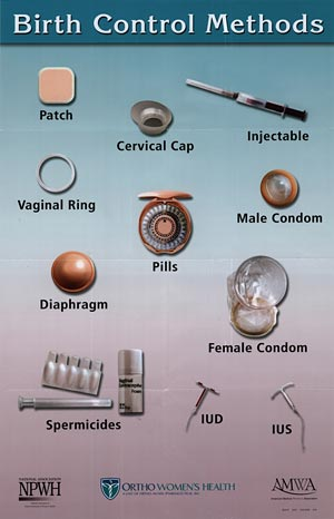 Best female birth control options