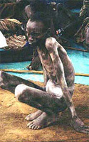 A starved Biafran Boy
