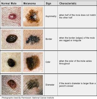 Skin Cancer Today Recognizing Skin Cancer