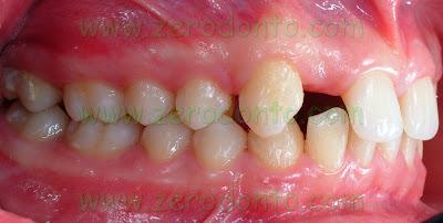 Agenesia dentaria
