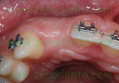 Visione occlusale lacuna dentaria