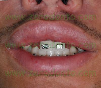 Estetica periorale agenesia dentaria