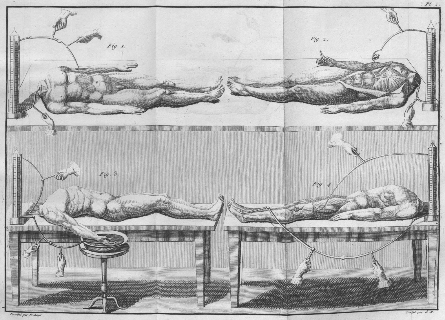 Experiments with headless cadavers