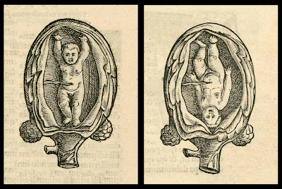 foetus upright and upside down in uterus - anatomical woodcut