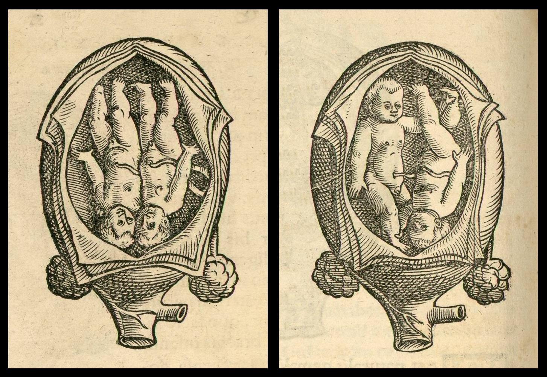 [Jacob+Rueff+-+De+conceptu+et+generatione+hominis+-+1554+(7).JPG]