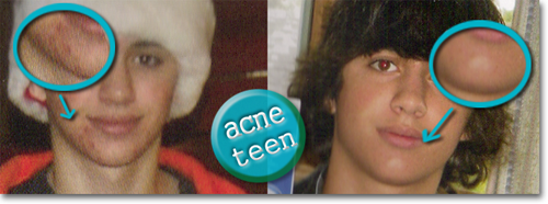 Acne Teen August 2009