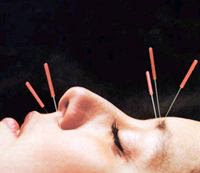 Facial Acupuncture for Wrinkles?