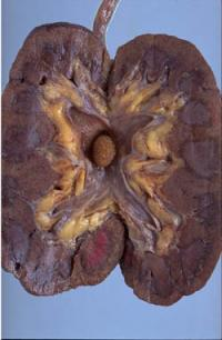 nUtRi wORld Diet Gagal Ginjal Kronik GGKChronic Kidney