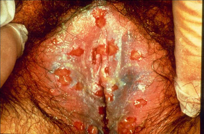 herpes simplex type 2 treatment ringworm