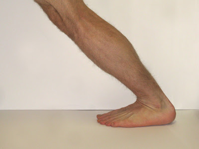 Foot Arch Pain Exercises