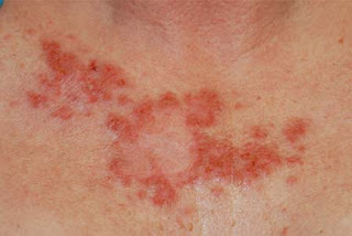 Skin Cancer Warning Signs First Signs Of Skin Cancer Early Warnings
