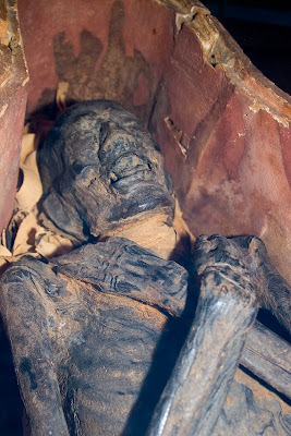 Medical Center to Scan Albany Institute Mummies