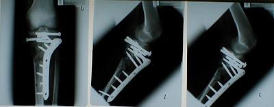 Rontgenfoto van mijn been - met dank aan die fijne beveiliging door de Gemeente Politie Maastricht (Veiligheid daar hebben ze nog nooit van gehoord)