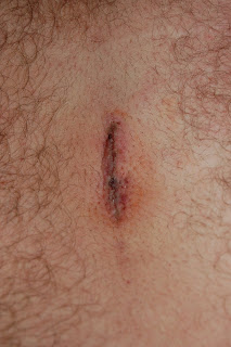 Fresh scar after a microdiscotomy of the L4-5.  They glued him shut!