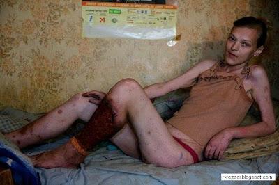 hiv prostitutes