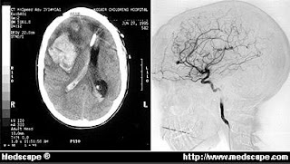 Left  A CT scan revealing a large intraparenchymal hemorrhage in the    Intraparenchymal Hemorrhage Mri