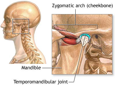 Tmj Surgery To Correct Tmj