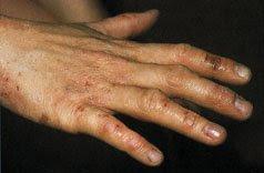 icke allergiskt kontakteksem