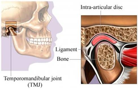Jaw Pain After Car Accident