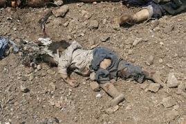 کودکان قربانی جنگ در لبنان