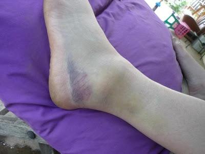 foot bruise