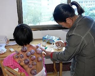 Ventouse verre medecine chinoise
