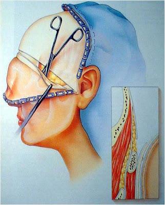 Cirugia Maxilofacial: Caso #1; Fractura Multiples Faciales.