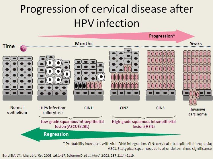 8 kérdés, amit fel kell tenned a nőgyógyászodnak a HPV-ről