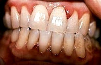 Scurvy disease pictures: gingivitis hemorrhage in vitamin C deficiency