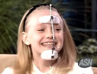Pediatric Dentistry Reverse Pull Headgear