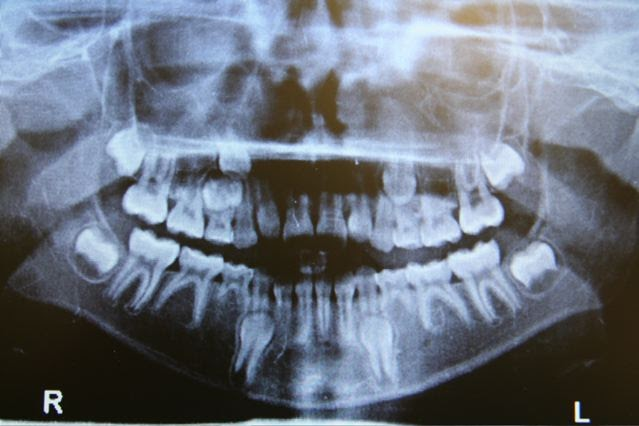 xray of front teeth - photo #17