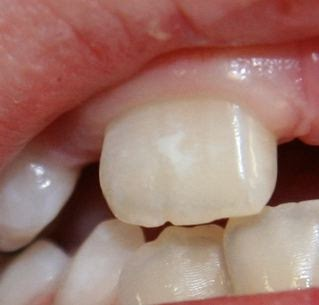 Pediatric Dentistry White Spots On Teeth Enamel Hypoplasia