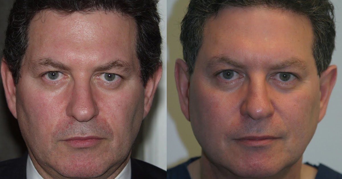 Dr Laurence Kirwan: My first CPT Thermage treatment