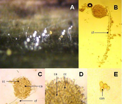 aspergillus parazita