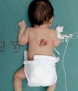 un bebé de origen chino ha sido sometido a una operación de tres