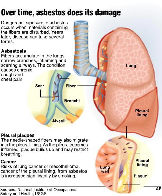 Mesothelioma: What is Asbestosis ?