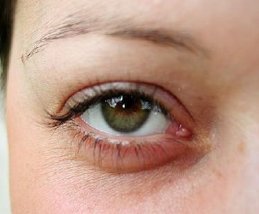 how to have clear bright eyes