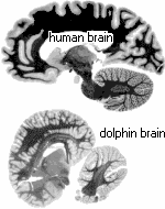 Image: Sagittal sections of a human brain and a dolphin brain.