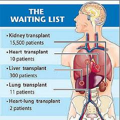 statistik 2007 pesakit yang menanti penderma organ